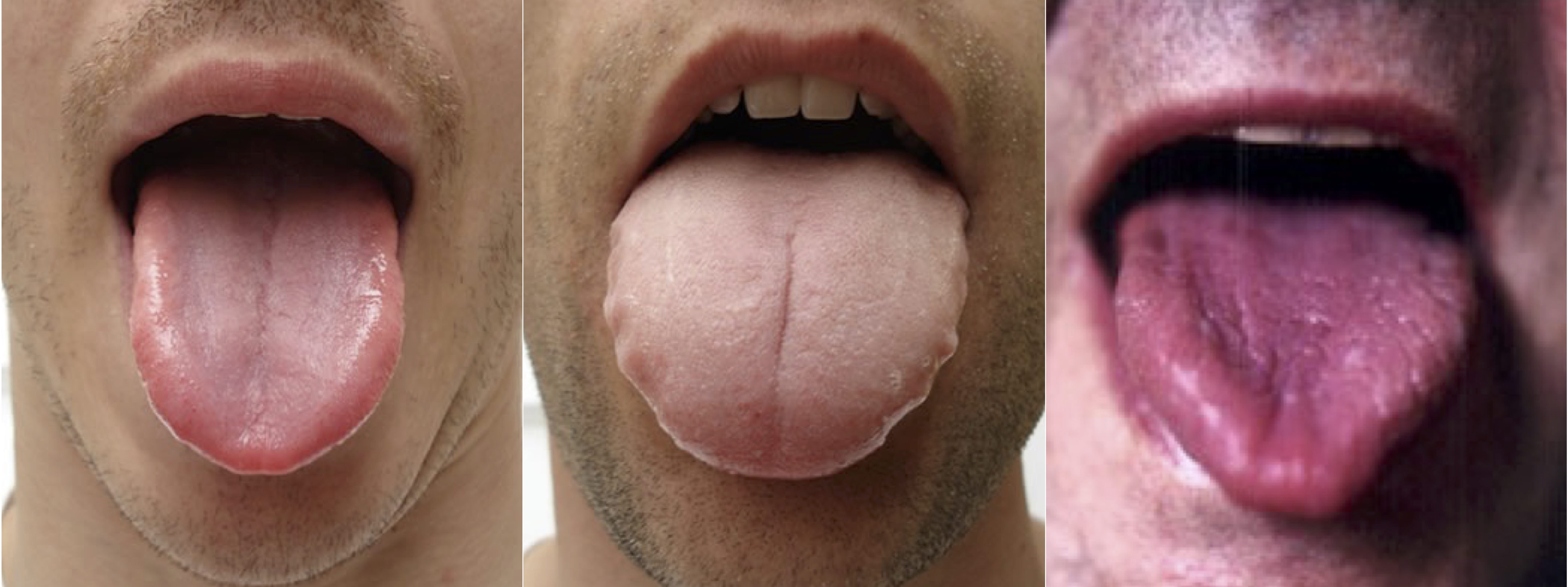 Chinese Medicine Tongue Diagnosis